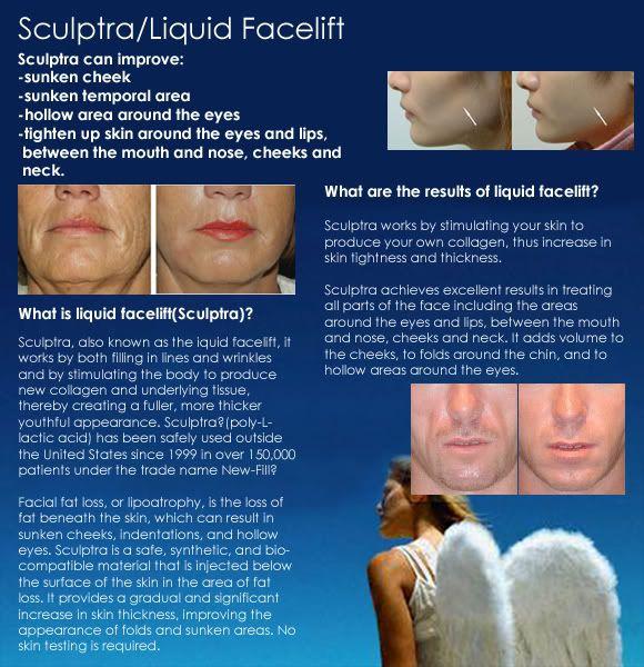 sculptra info