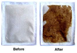 before after detox foot pad