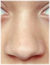 Broad Nasal Tip