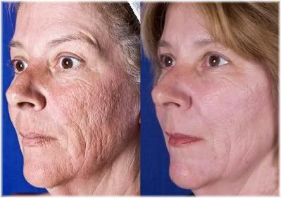 before and after laser resurfacing treatment