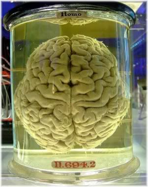 brain in formaldehyde