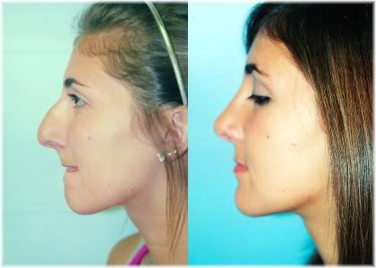 rhinoplasty female before and after