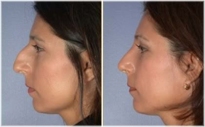 nose job results