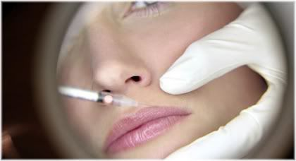 collagen injection lip