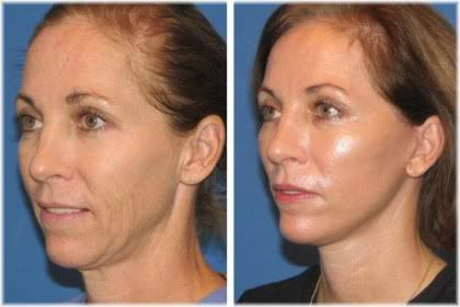 mini facelift before after