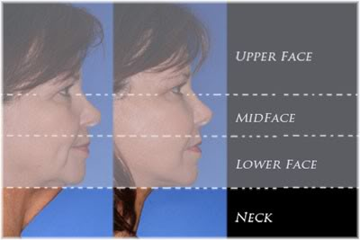 areas of face