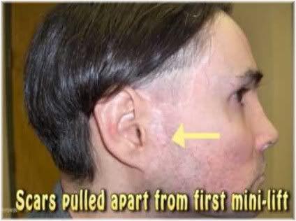 mini lift scar