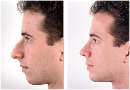 rhinoplasty male before and after