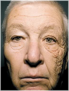 effect of sunlight on skin
