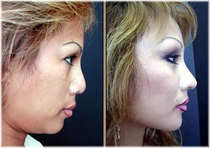 augmentation rhinoplasty