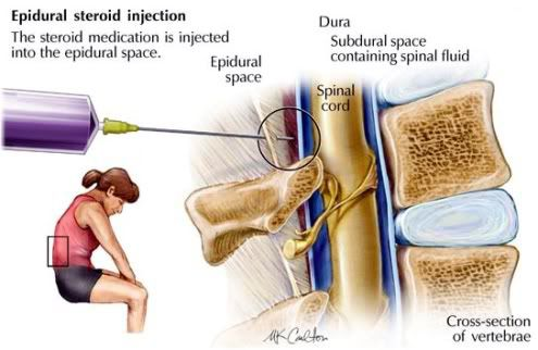 Epidural Steroid Injection