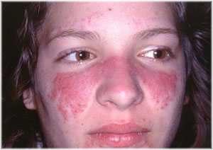 Skin Hyperpigmentation Causes & Treatments | EruptingMind