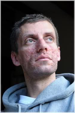 man acne
