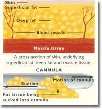 liposcution cannula
