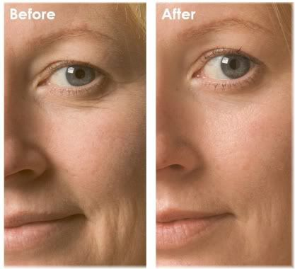 before after oxygen facial