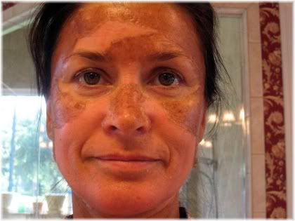 chemical peel face