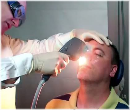 laser skin resurfacing treatment