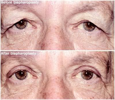 Before and after upper eyelid surgery.