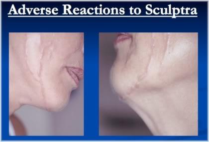 sculptra adverse reaction