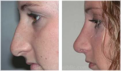 female nose before and after surgery