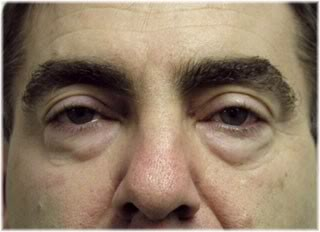 lower eyelid sagging