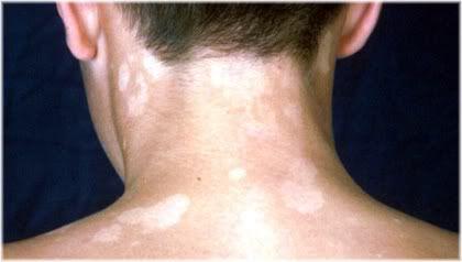 Pityriasis Versicolor hypopigmentation