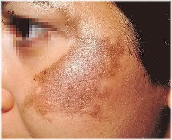 hyperpigmentation face