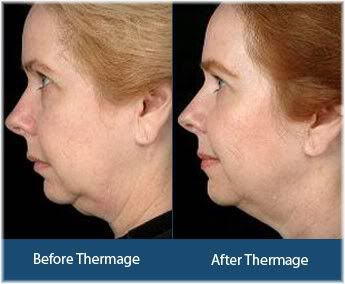 Thermage face results