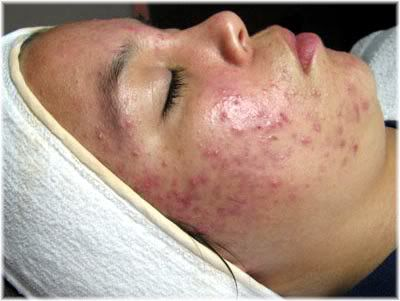 inflamed acne skin