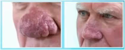 rhinophyma surgery