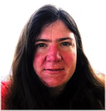 rosacea woman face