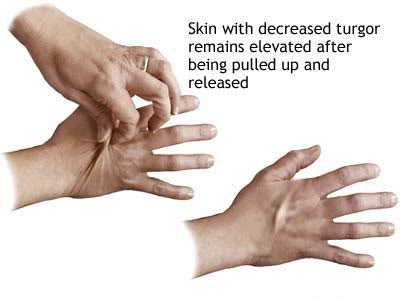 pinching skin of hand