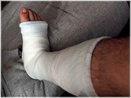 leg in plaster