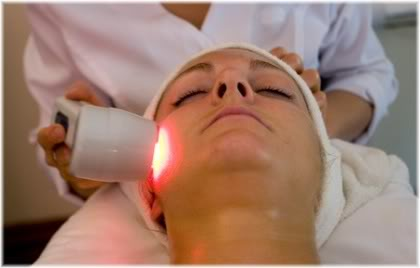 laser treatment face