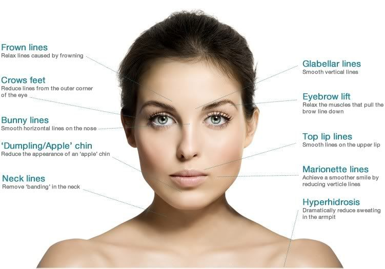 Botox application sites