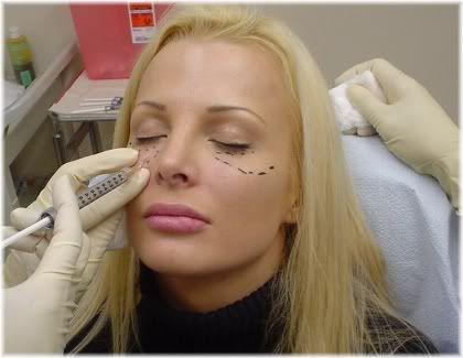 sculptra injection