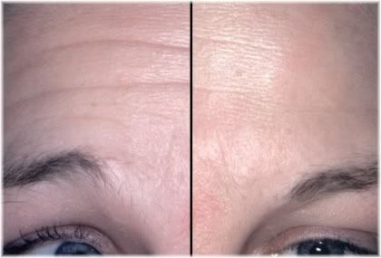 Botox forehead before after