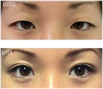 oriental eyelid surgery