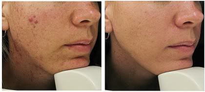 Before & after acne laser treatment.