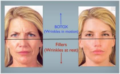 Botox and dermal filler on the face