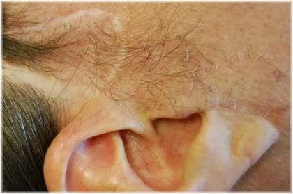 facelift scar