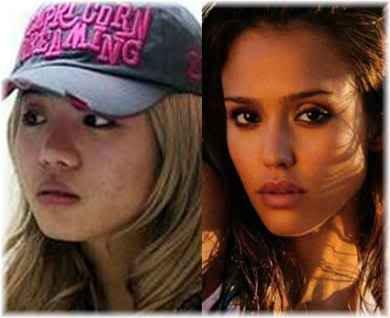 girl plastic surgery
