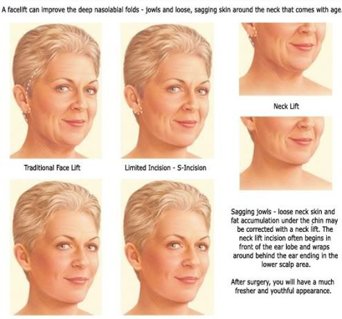 facelift types
