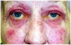stage 4 rosacea