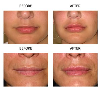 collagen injection before after