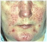 stage 2 rosacea
