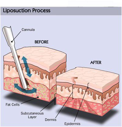 Liposuction Explained With Pictures | EruptingMind