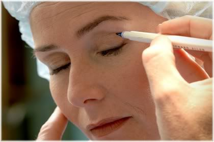 facelift incision marking