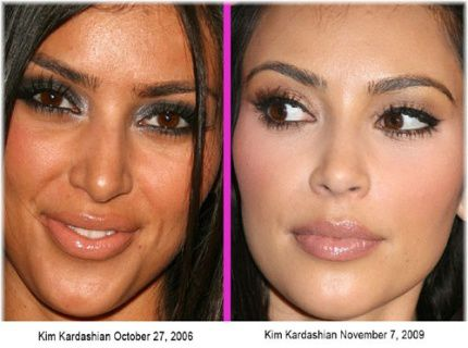 Kim Kardashian before after plastic surgery