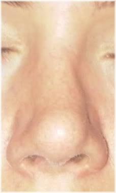 bent nose